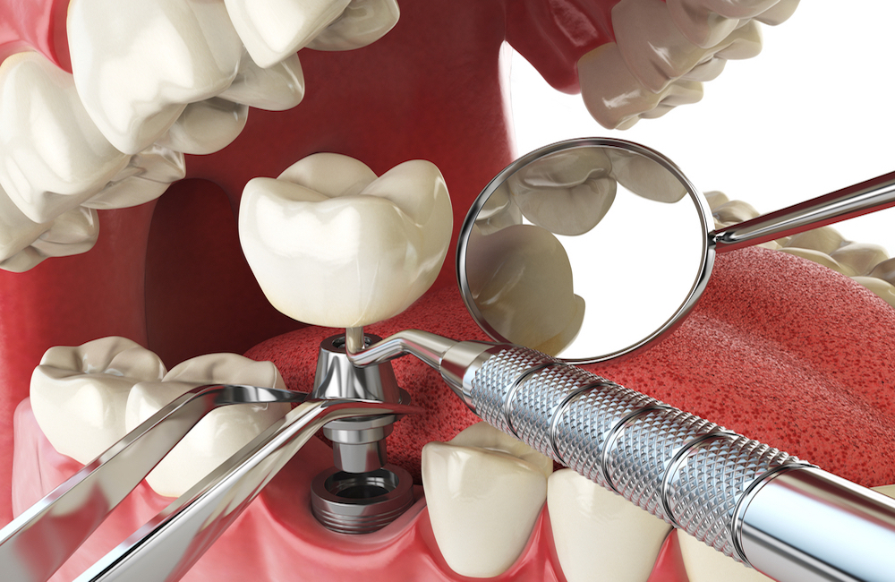 professional dentist implantology